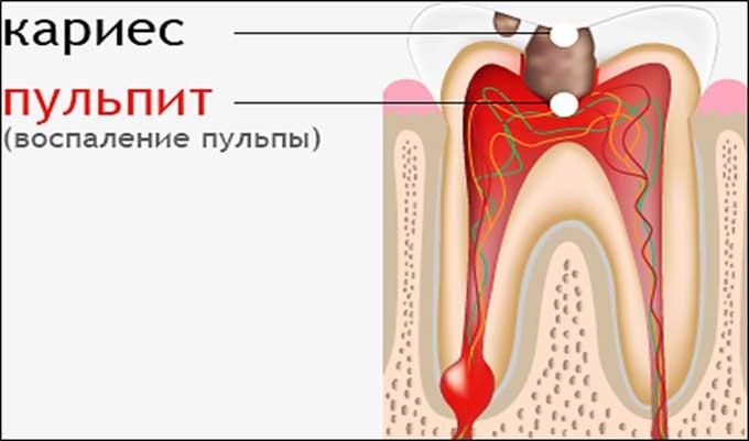 пульпит зуба чем лечить