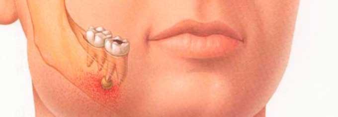 как лечится пульпит зуба