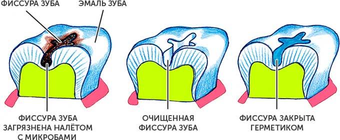 герметизация фиссур зубов
