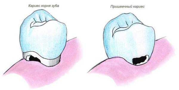 кариес корня зуба симптомы