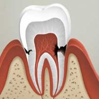Откуда берется кариес на корне зуба и как его лечить?