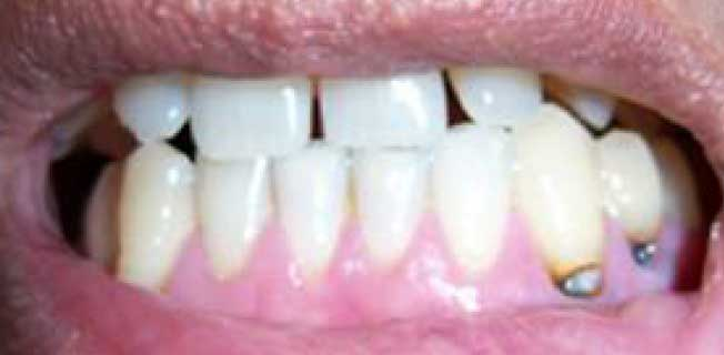 кариес корня зуба лечение