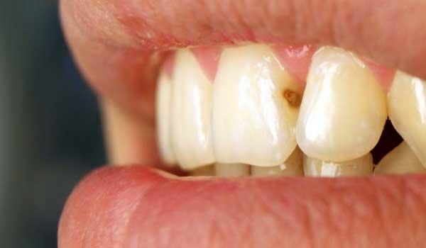 кариес между зубами