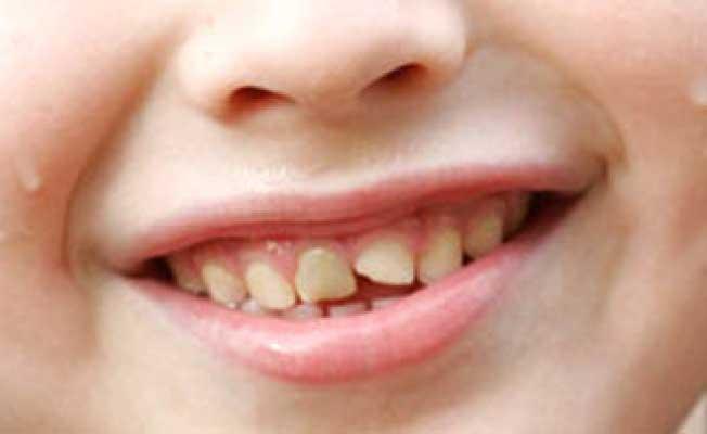 откололся зуб как восстановить