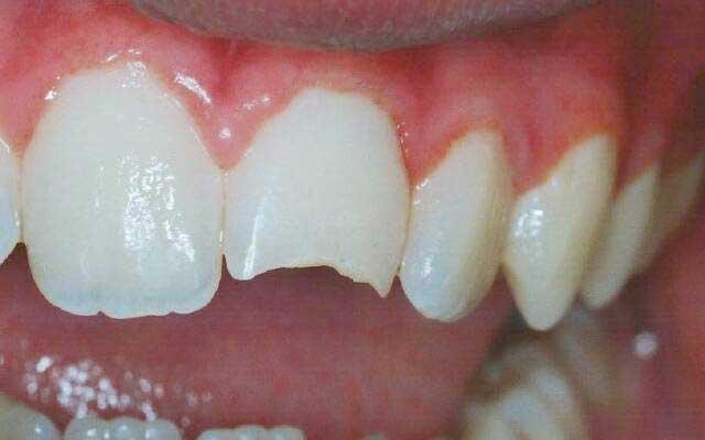 Откалываются зубы, что делать, если откололся кусочек зуба 55