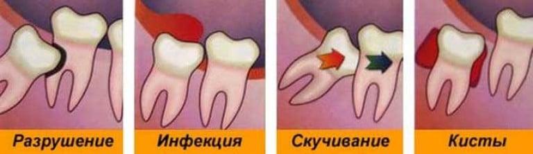 Чтобы зуб мудрости рос ровно