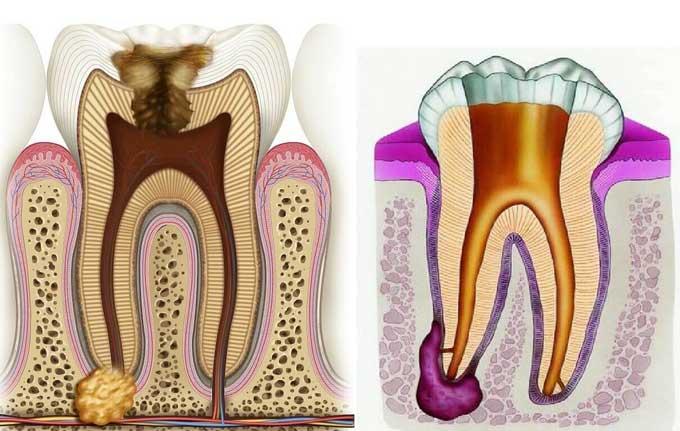 гранулема корня зуба лечение