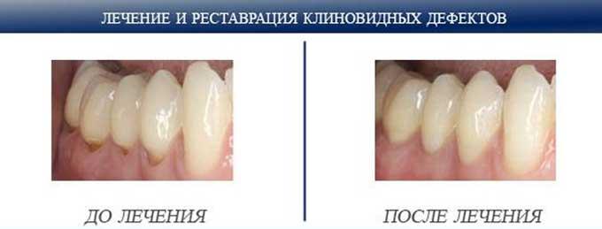лечение клиновидных дефектов