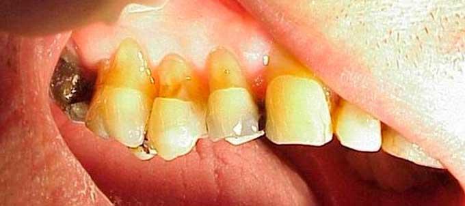 некариозные заболевания зубов