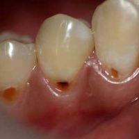 Причины и способы лечения клиновидного дефекта зубов