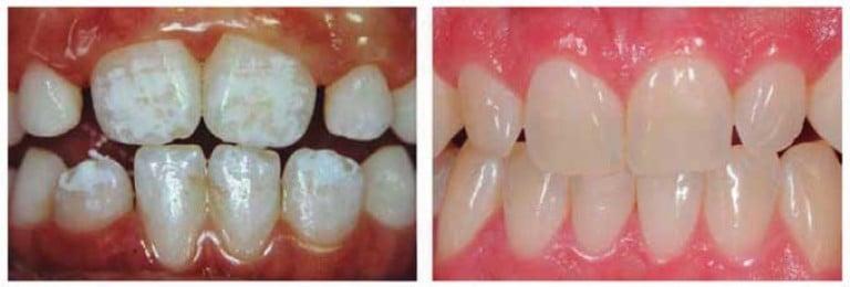 Дисплазия постоянных зубов