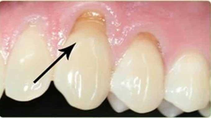 некариозное поражение зуба