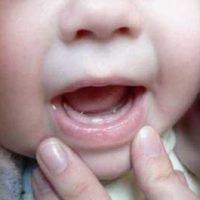 Свечи для детей Вибуркол при прорезывании зубов