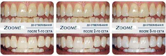 отбеливание тетрациклиновых зубов