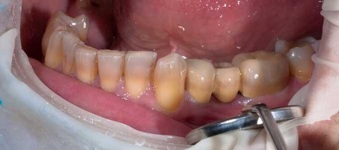тетрациклиновые зубы что это