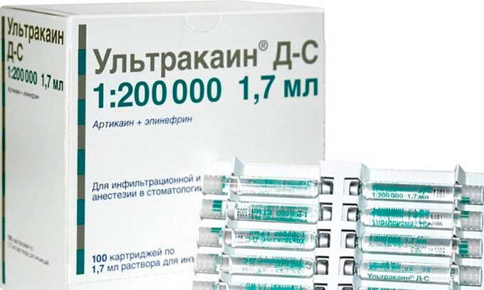 ультракаин в стоматологии инструкция по применению