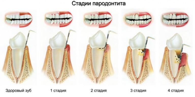 Почему болят дёсны и шатаются зубы