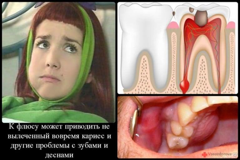 Как лечит флюс на зубе в домашних
