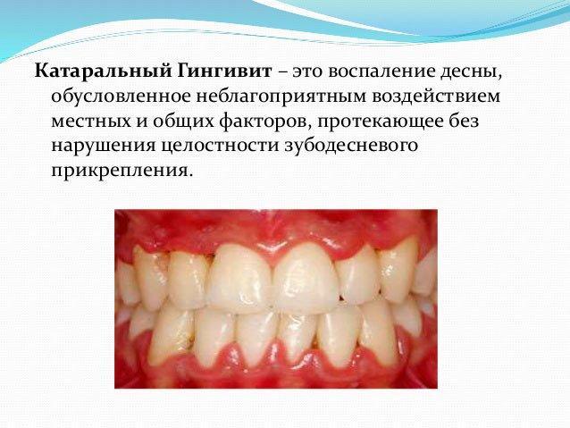 слайд определение катарального гингивита