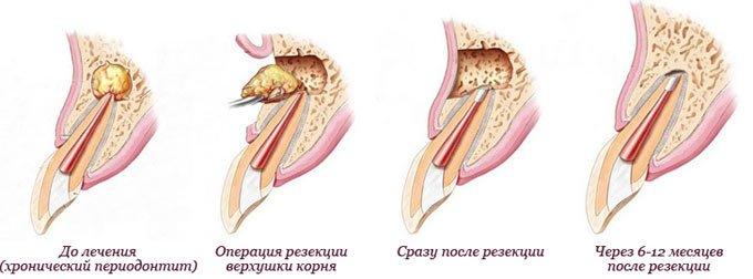 схема лечения кисты