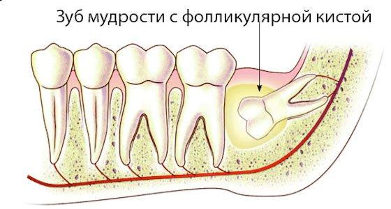 зуб мудрости с фолликулярной кистой