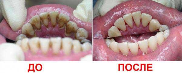фото до и после лечения гингивита