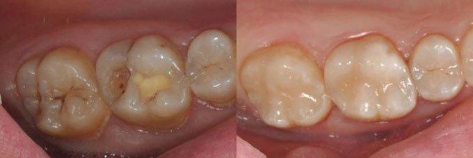 пломба в зубе