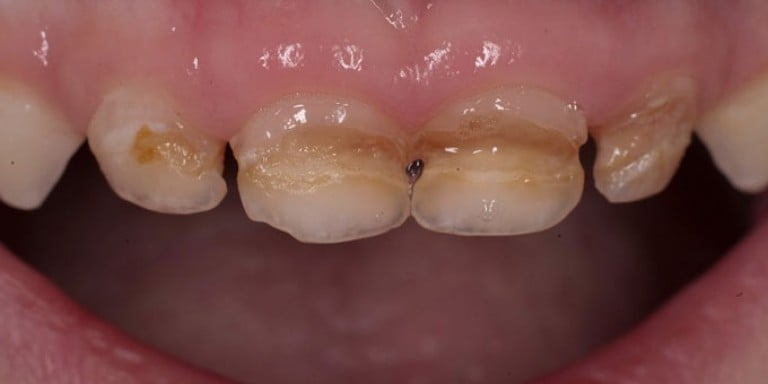 Как лечат передние молочные зубы от кариеса