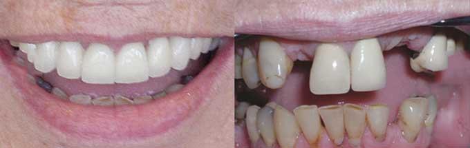 фото до и после протезирования