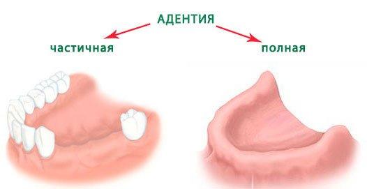 полная адентия верхней челюсти