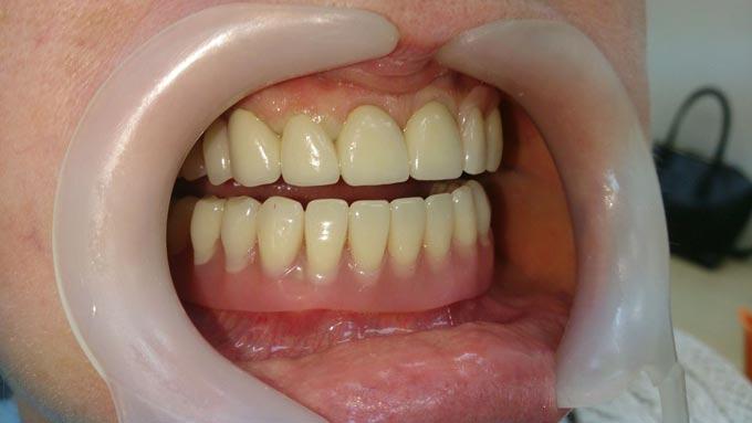 стоматологическая лягушка