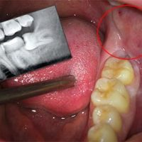 Основные причины боли в десне под зубом, коронкой или протезом