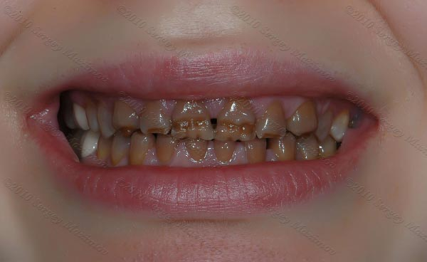 полное отсутствие эмали зубов