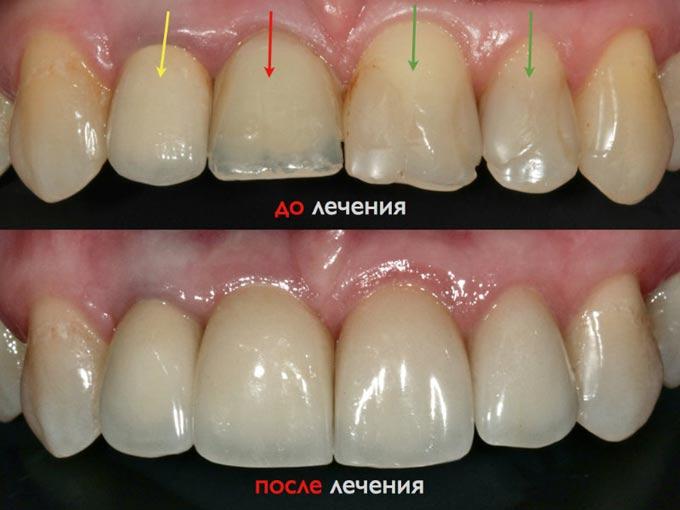 фото до и после лечения гипоплазии