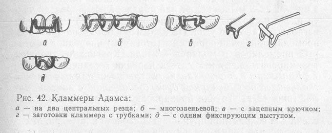 кламмер Адамса
