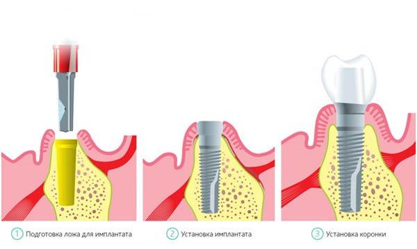 схема операции имплантирования