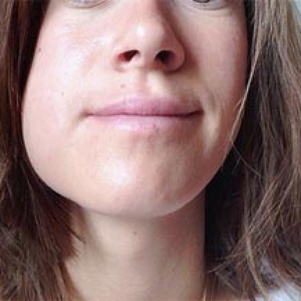 Если из за зубной боли опухла щека как лечить