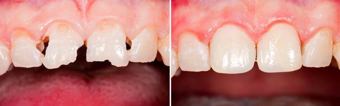 реставрация переднего ряда зубов