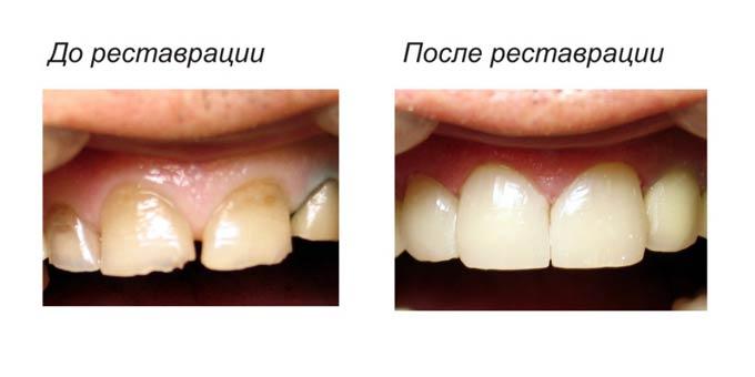 до и после реставрации зубов