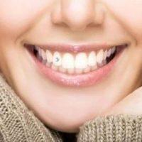 Украшение зубов скайсами как дань моде