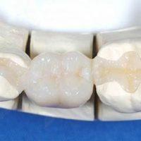 Адгезивное протезирование и его особенности