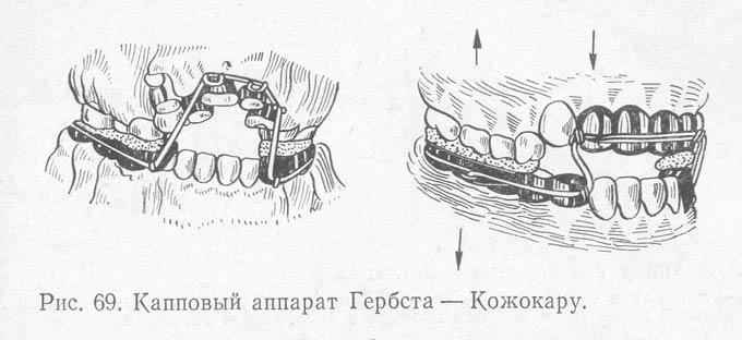 капповый аппарат Гербста