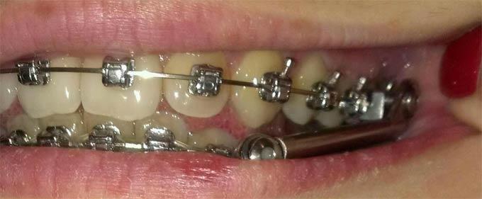 фото аппарата Гербста во рту пациента