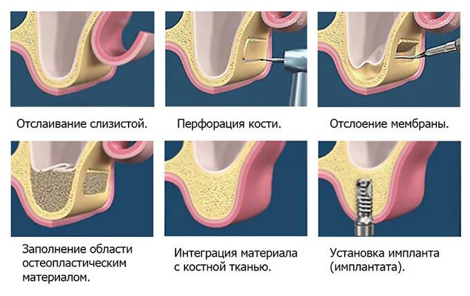 операция костной пластики