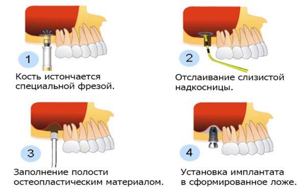 проведение операции костной пластики