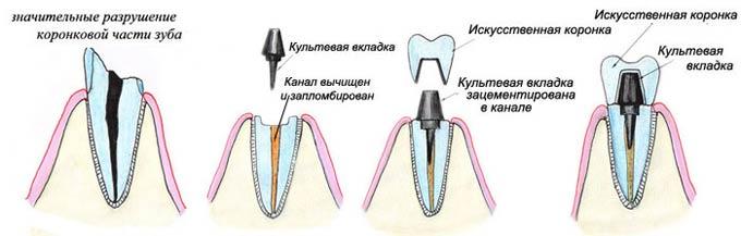 схема восстановления зуба