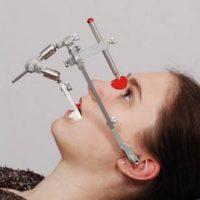 Нюансы применения лицевой дуги в стоматологии