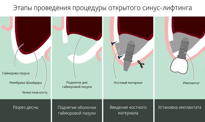 процедура синус лифтинга