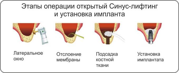 открытый синус лифтинг и установка импланта