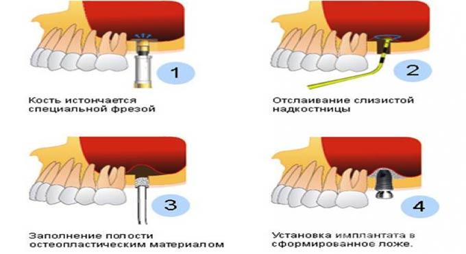 4 этапа синус лифтинга